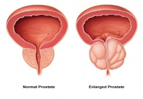 Prostate Laser Surgery Cost in India