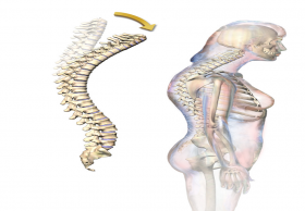 Best Kyphosis Surgery Treatment in India|Top Spine Specialists