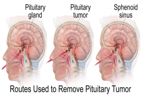 Pituitary tumor surgery cost in India