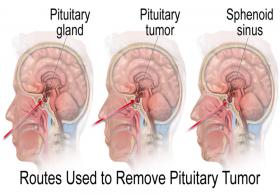 Pituitary Tumor Surgery Cost in India|HealthcaretripIndia