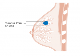 Low cost breast cancer surgery in India