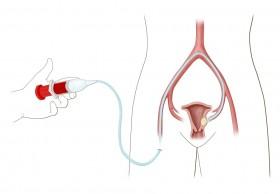 Uterine Artery Embolization|Non Surgical Treatment of Fibroids