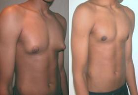 Gynecomastia, Male Breast Reduction Surgery in India|HealthcaretripIndia