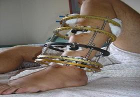 Limb lengthening surgery In India|HealthcaretripIndia