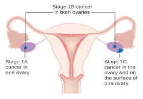 Ovarian Cancer Surgery Treatment in India