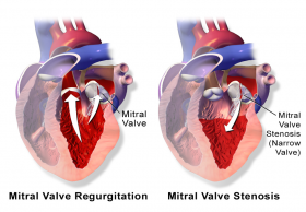 Low cost Heart surgery in India