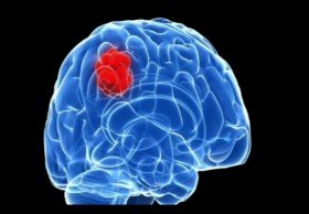Affordable Brain Tumor Surgery Cost in India|HealthcaretripIndia