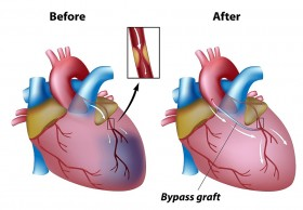 Low cost Heart Bypass Surgery in India