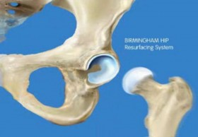 Hip Resurfacing surgery in India