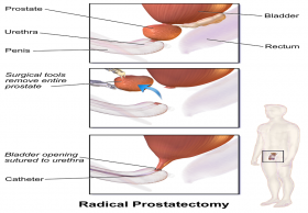 Laparoscopic Radical Prostatectomy