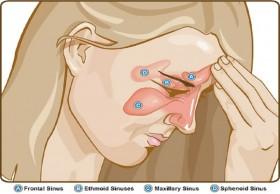Sinus surgery Cost in India|HealthcaretripIndia.com
