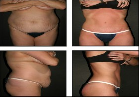 Low cost Tummy tuck surgery in India