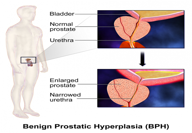 Prostate Treatment in India|TURP Surgery|HealthcaretripIndia