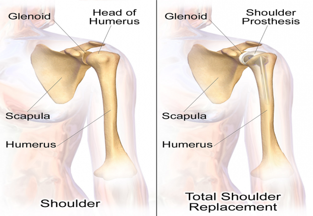 Shoulder Replacement Surgery Cost in India|HealthcaretripIndia