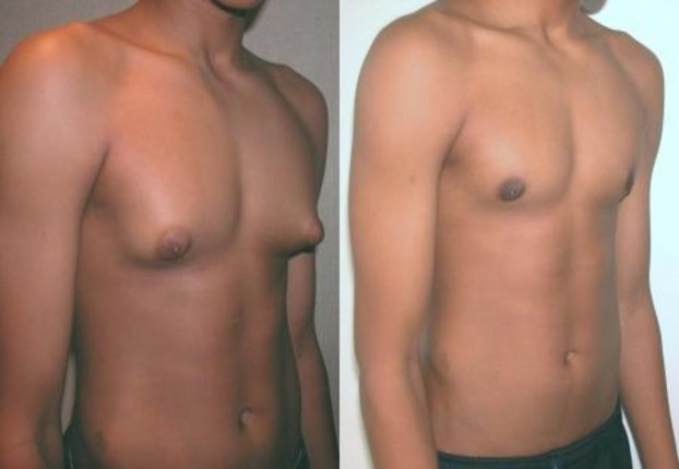 Gynecomastia, Male Breast Reduction Surgery in India