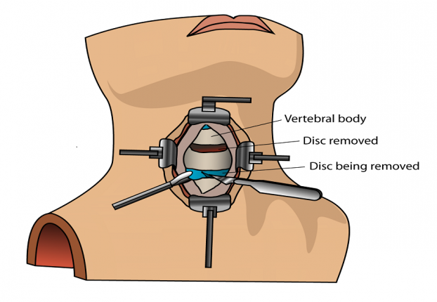 Anterior cervical discectomy and fusion spine surgery in India