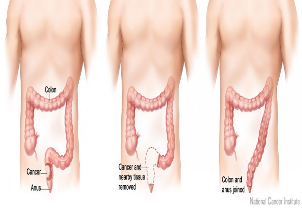 Low cost surgery for Colon Cancer in India