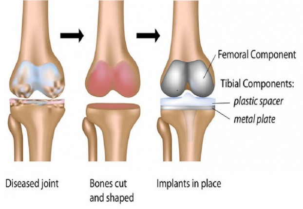 Low cost knee replacement surgery in India