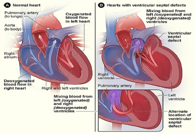 Heart surgery in children,VSD surgery cost in India